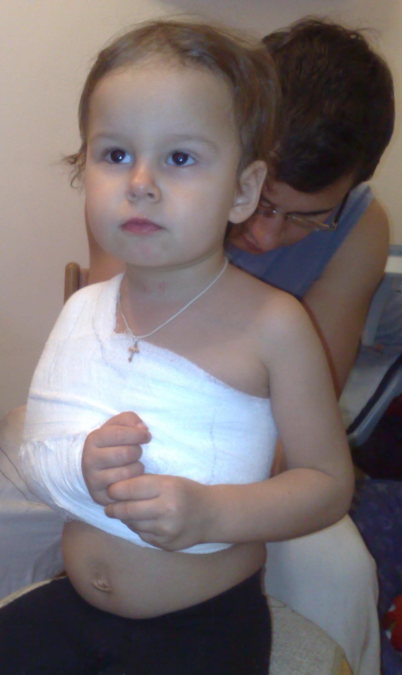 Повязка при переломе ключицы у ребенка фото