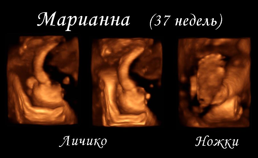 Беременность чудо