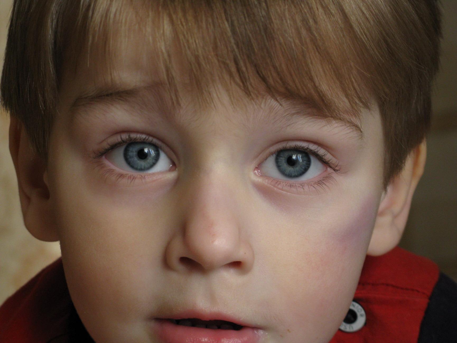 Ах, эти серые глаза - меня пленили!. Очаровательные глазки