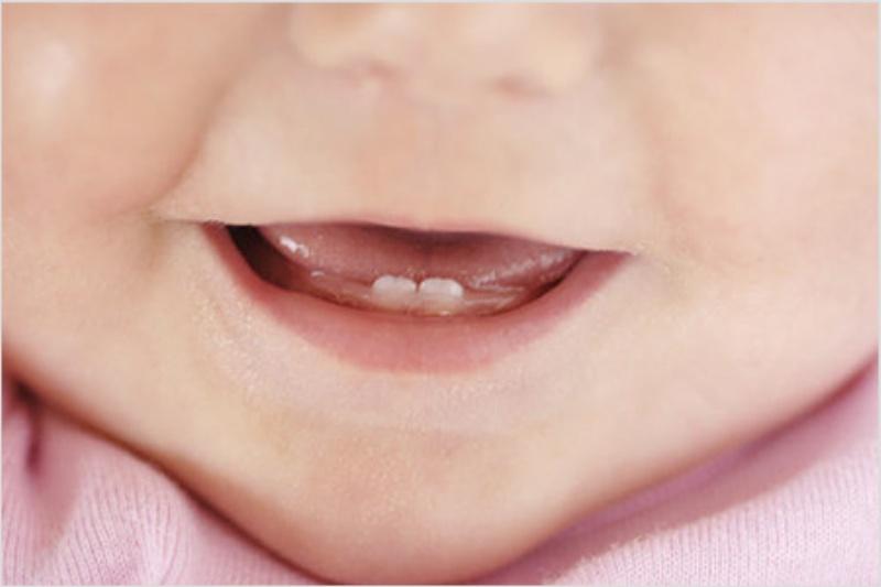 Первые зубки.. Мой первый зубик