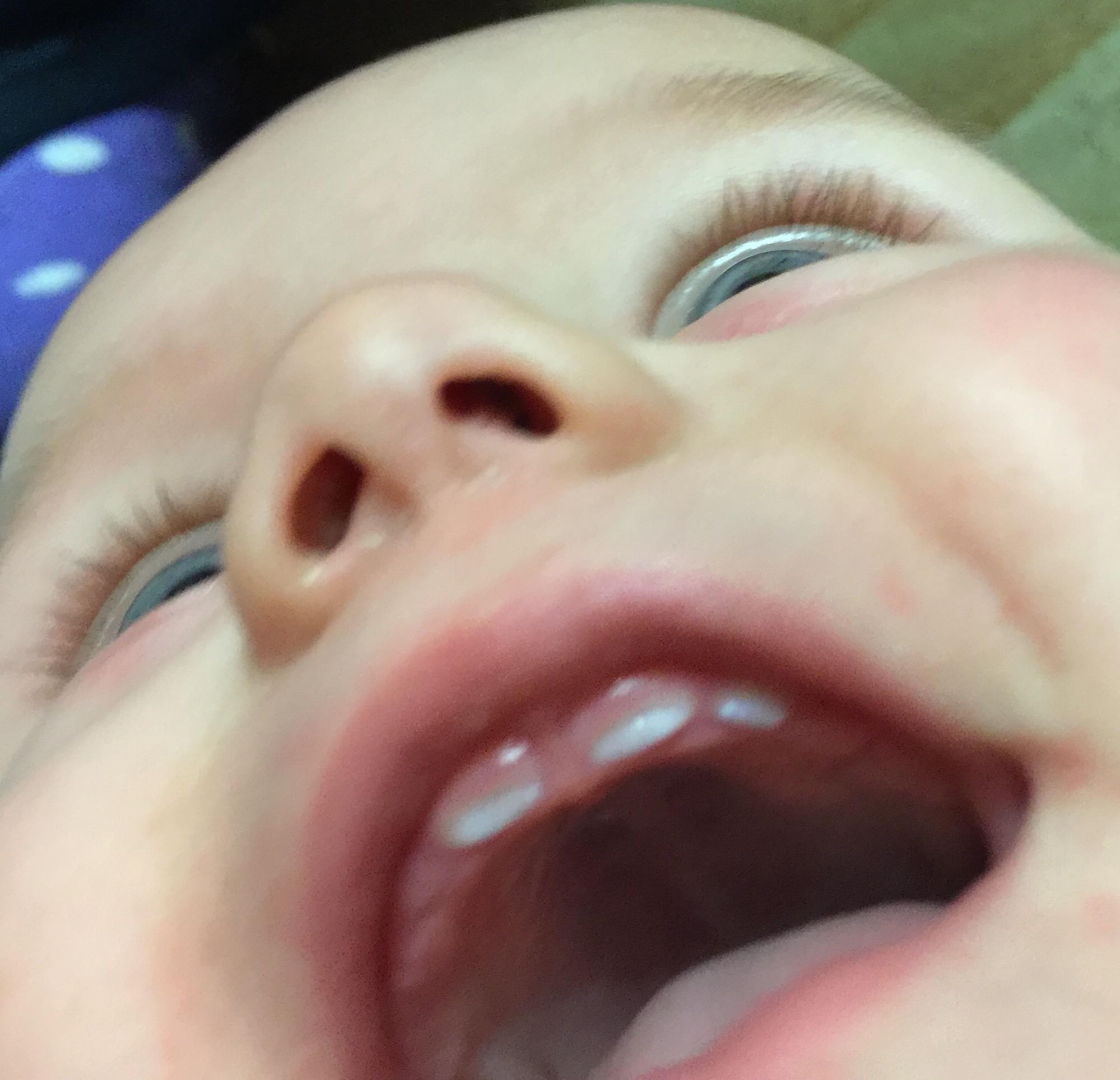 Зубки как грибочки. Мой первый зубик