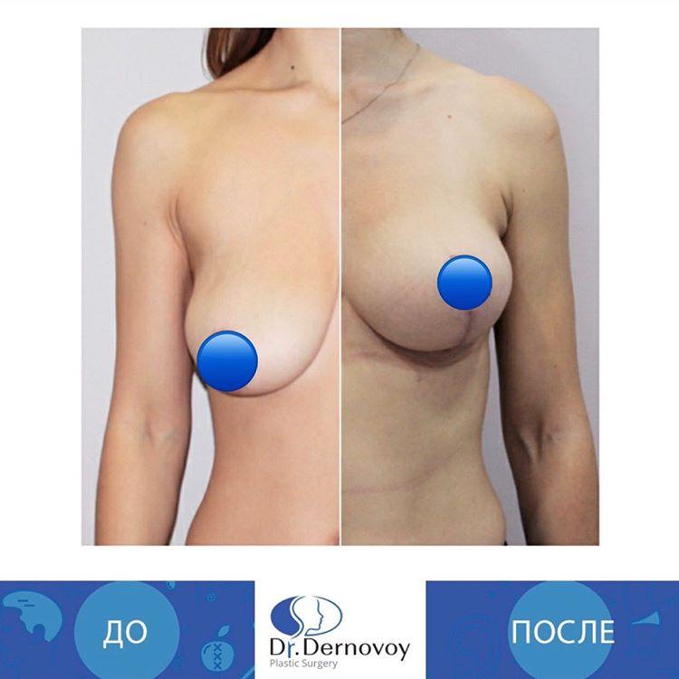 Подтяжка груди после кормления