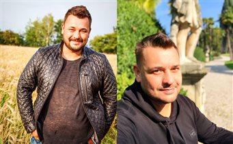 Cергей Жуков: до и после операции, фото. 'Это не он, его подменили!'