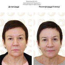 Подтяжка лица: нитевой лифтинг, филлеры, ботокс - фото 'до и после'